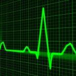 Forex Market Analysis – Technical and Fundamental Analysis